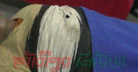 বিয়ের ২৪ ঘন্টার মধ্যেই যুবকের পুরুষাঙ্গ কর্তন
